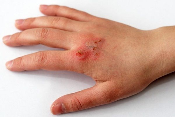 ghav ka ilaj wound treatment in hindi