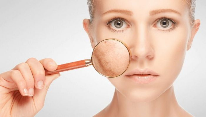 गर्म पानी - jhaiyan hatane ke upay tips to remove acne and pimple e1533836129295 - गर्म पानी पीने के फायदे औषधीय गुण -Khali Pet Garam Pani Peene Ke Fayde