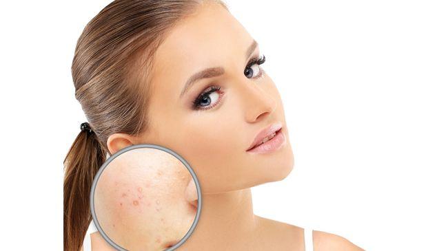 skin problem treatment in hindi