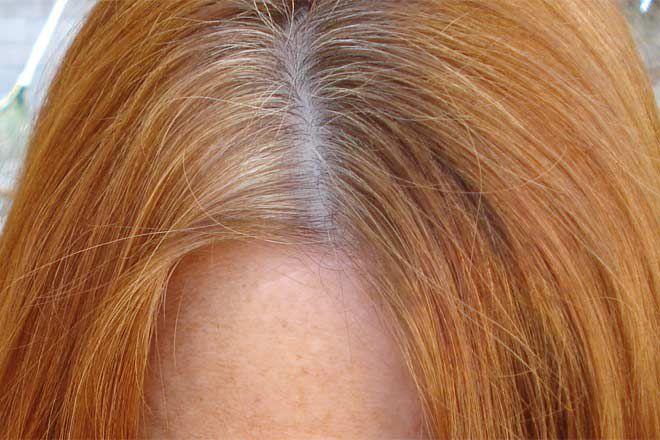- dry scalp 1 - पुरानी से पुरानी कब्ज पल भर में ठीक करे एलोवेरा, जानें और भी फायदे