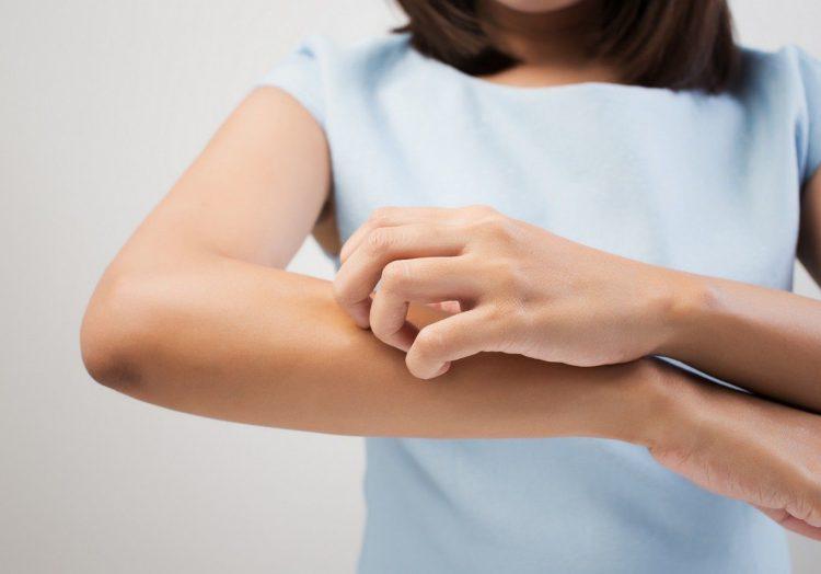 - eczema e1534325454308 - गोरख मुंडी बूढ़े में जवानी भर दे, आँखों को 6/6 और बुद्धि को प्रखर कर दे, सैकडों रोगों का अद्भुत रामबाण उपाय, जरूर पढ़े और शेयर करे