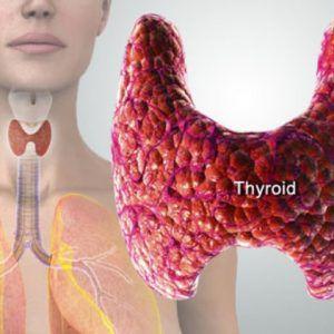 थायराइड का अचूक उपचार thyroid ka ilaj in hindi