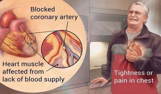 - heart attack se kaise bache 534x313 - आयुर्वेद for life