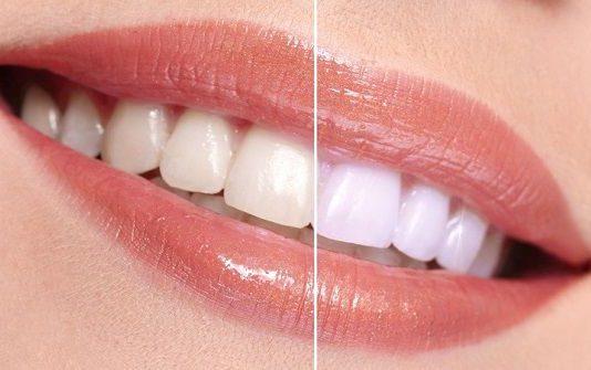 दांत दर्द का इलाज dant dard ka ilaj in hindi